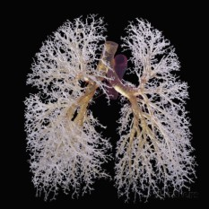 The bronchial tree: www.healthline.com/human-body-maps/lung-trachea-bronchial-tree